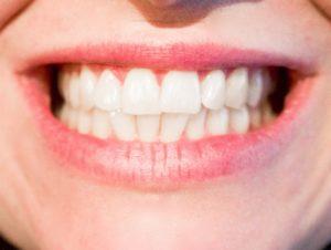 Consider a dental plan