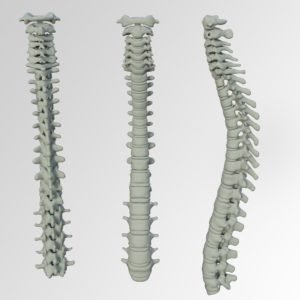 Images of a human spine